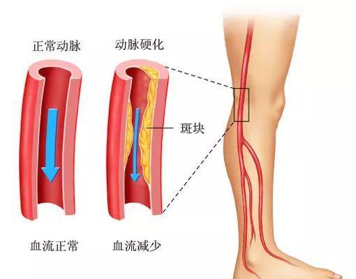 動脈 症 閉塞 硬化 性 下肢