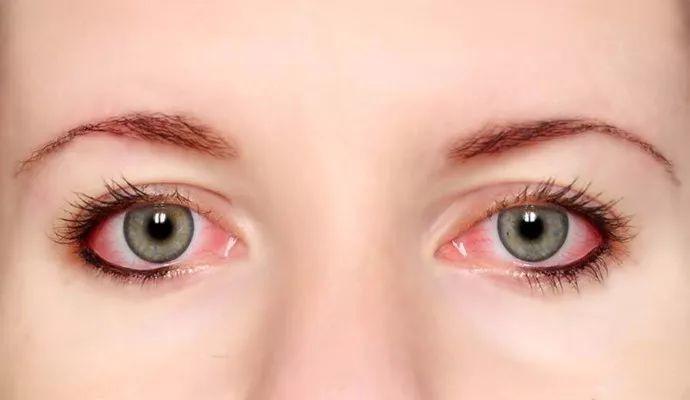眼睛充血_滁州人当心!一旦眼睛出现这8种症状,可能是大病征兆!