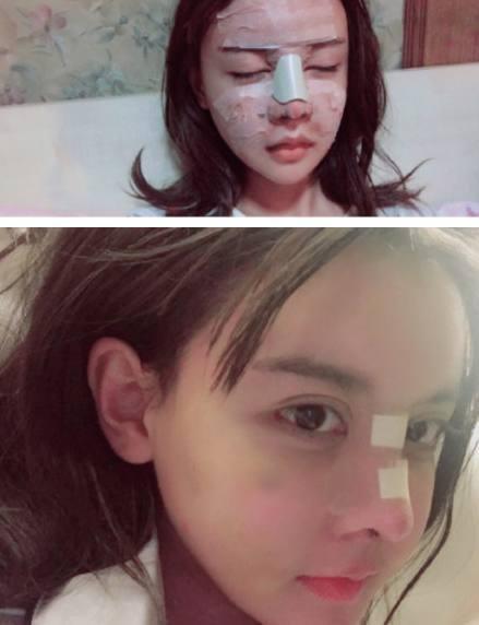 变形计:韩安冉整容成瘾,整成猪精鼻,可她忽视了一个重要的部位