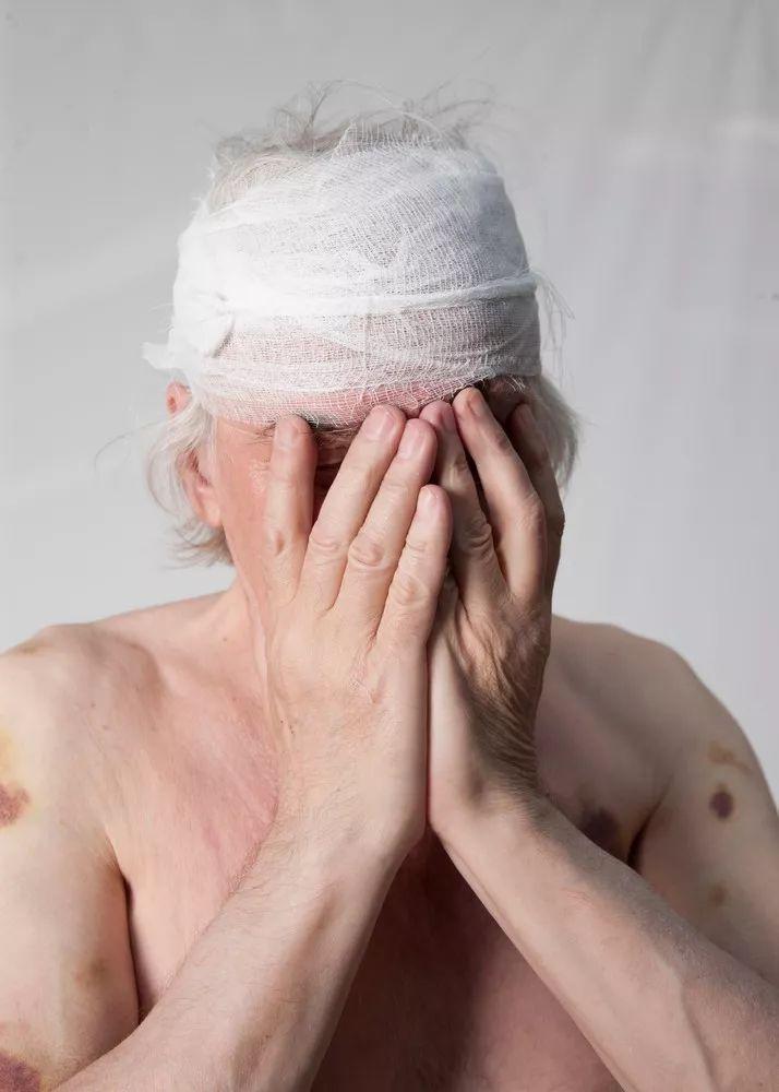 愤怒的人死得早!导致头痛、肺部疾病、心脏病……
