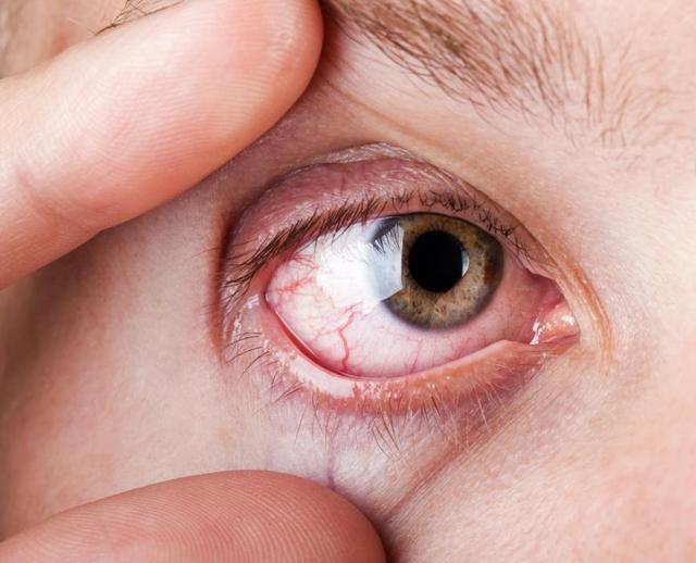 眼球血丝_眼睛布满红血丝?除了睡眠不足还有这些可能
