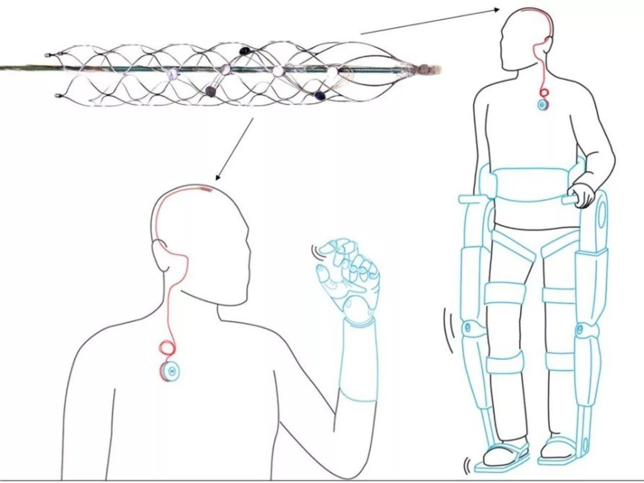 付费精选 | 大脑技术获新进展,仿生植入有望帮助瘫痪病人重新行走