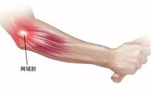健身不得不防的运动损伤!