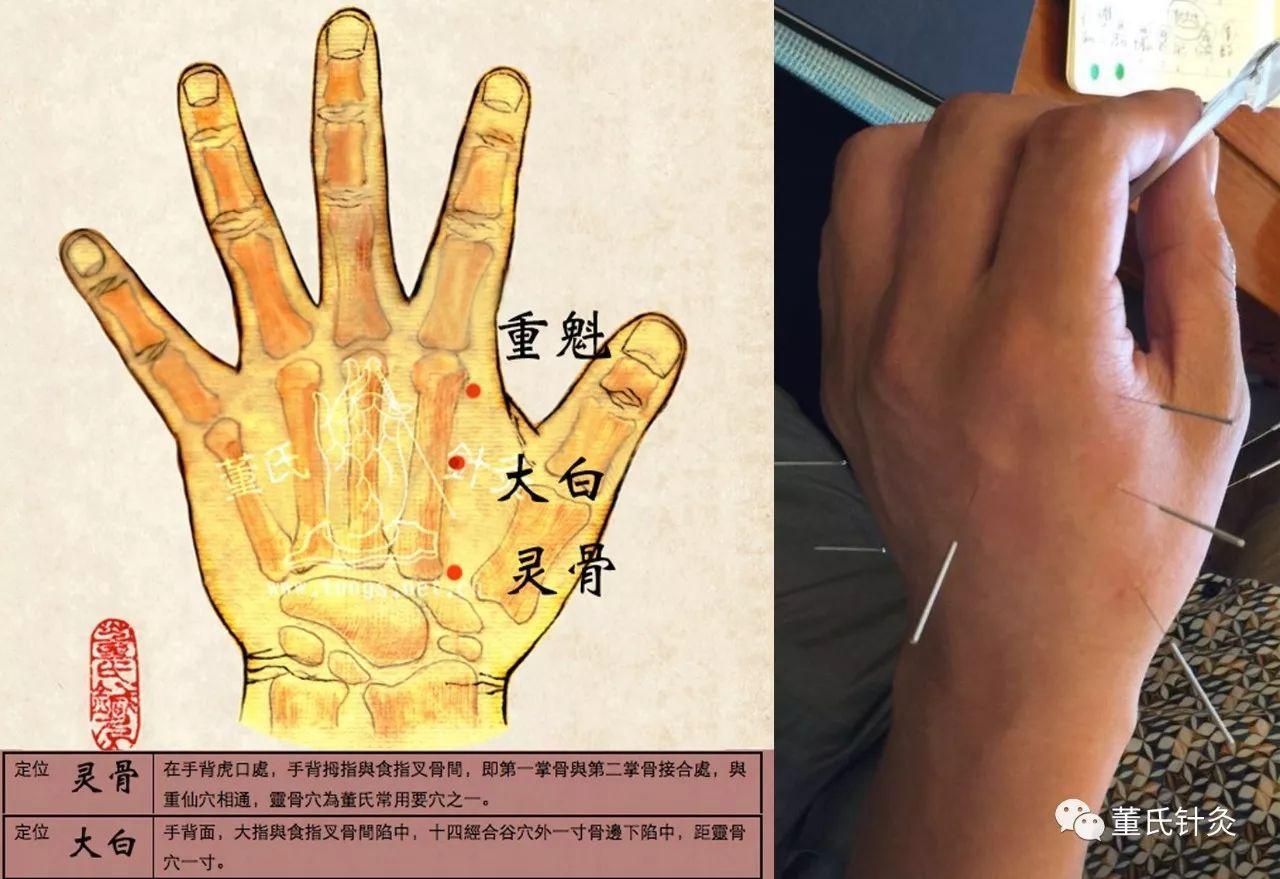 """Image result for 董氏针灸 咳嗽"""""""