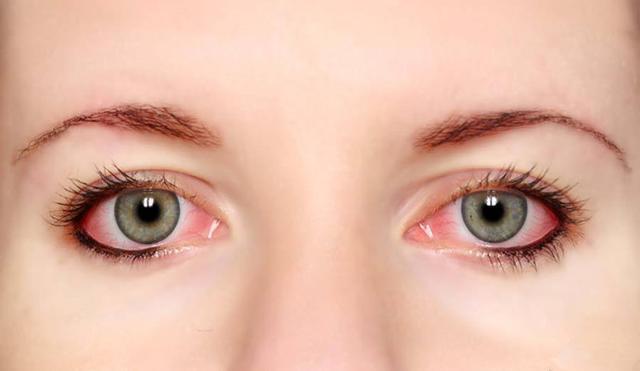 眼球充血图片_阿梅护肤:眼睛有红血丝,到底该如何避免呢?