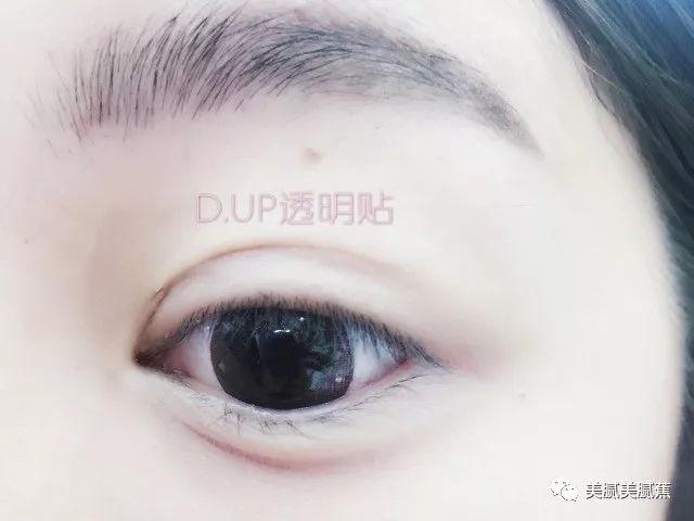 美探:拯救单眼皮,内双,肿经验,双眼皮贴老司机的教程眼泡稻草编织图片