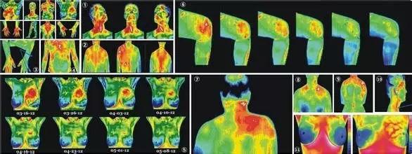 人体温度_红外人体生命热图:看寒热分布,辨阴阳虚实