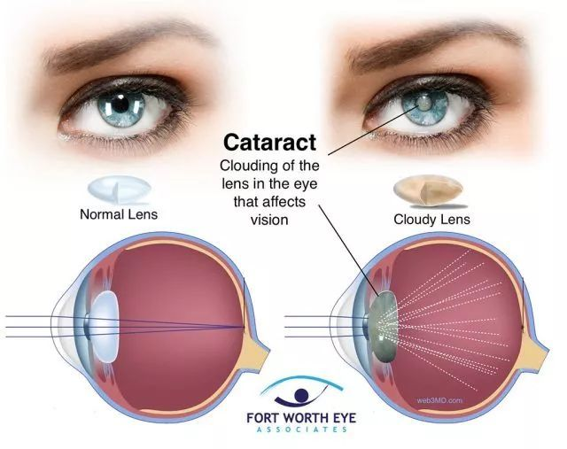 白内障眼球图片_正常眼睛(左)和白内障患者的眼睛(右)