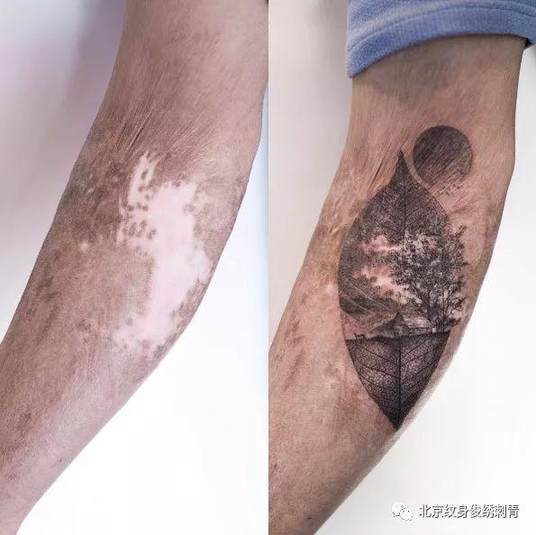 烫伤疤痕多久可以纹身分享展示