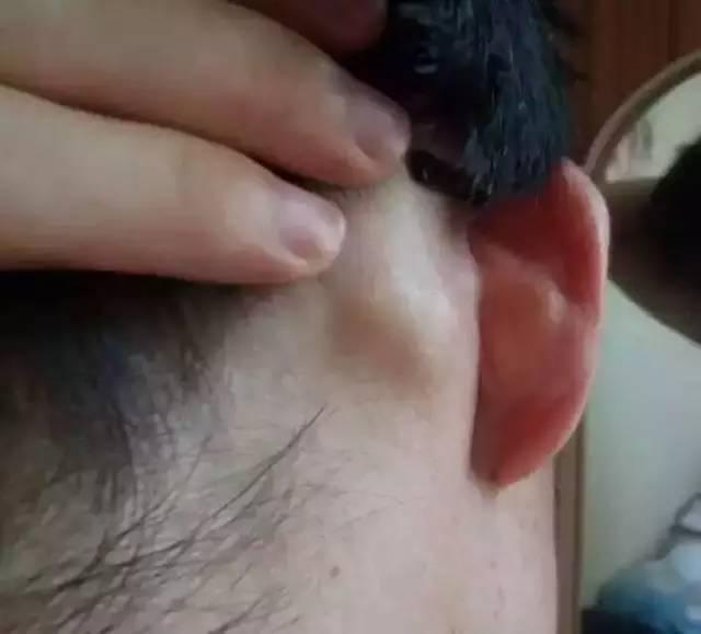 耳后淋巴肿大-淋巴癌是世界上唯一不能治愈的癌症 不可不通