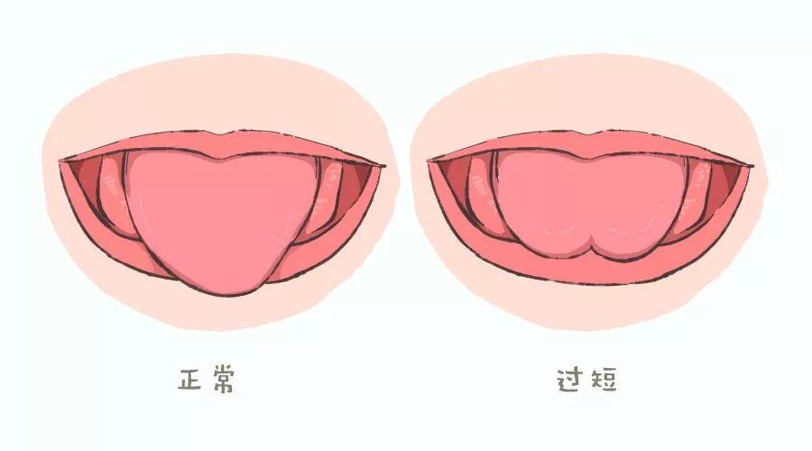 和1岁半宝宝讲不通_母婴 正文  舌系带过短,会限制舌头的正常活动,宝宝可能出现舌头不能