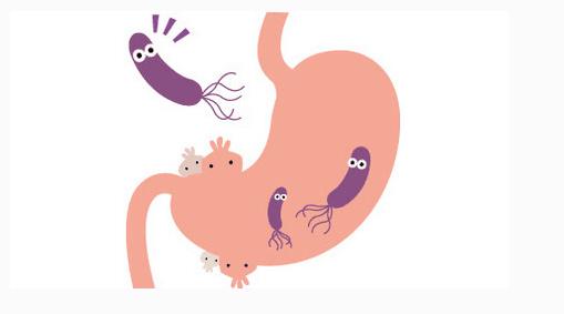 已经被幽门螺旋杆菌感染,需要多久会导致胃癌的发生