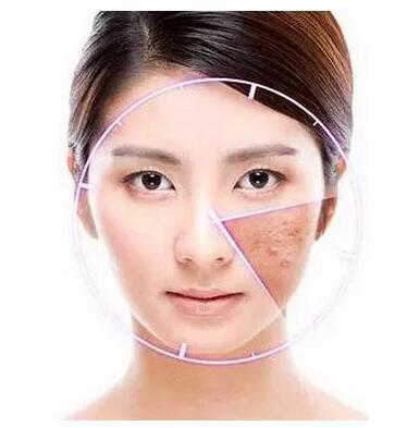 脸部皮肤过敏性湿疹怎么办 关于这些注意事项应该了解