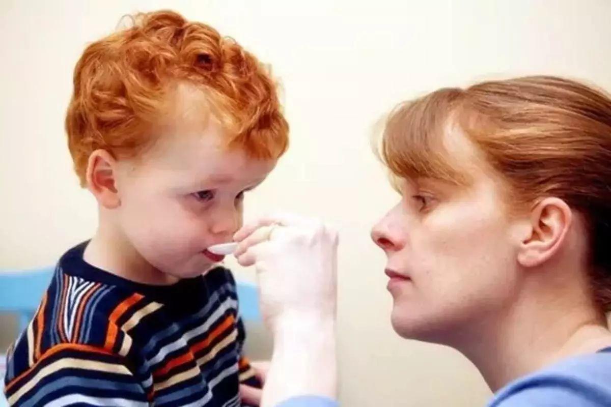 疱疹性咽峡炎不可怕 细心护理可自愈