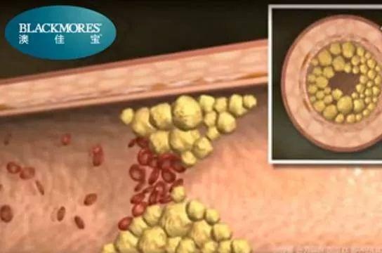 卵磷脂提取的原理_卵磷脂小体图片