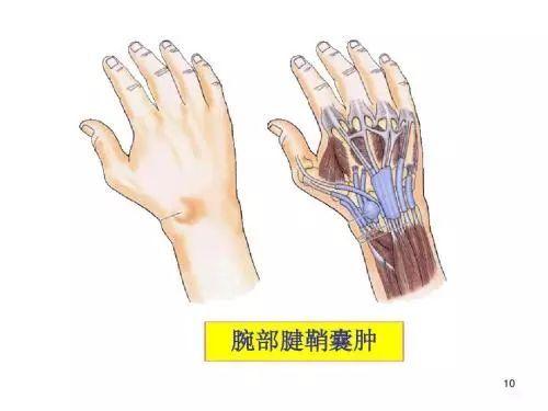 手腕长了不痛不痒的肿块怎么办?