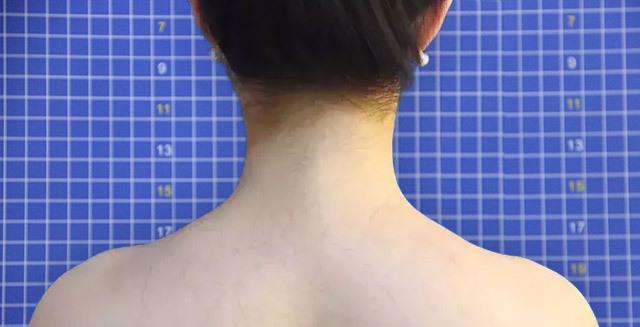 瘦效果怎么样_吕晓杰:那个一个月前打瘦肩针的女孩现在怎么样了?
