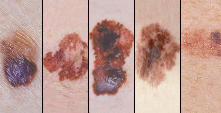 黑色素细胞发展而来的皮肤癌症,常发的部位在皮肤,但也可能出现在口腔