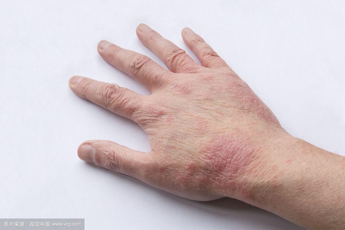南宁治疗荨麻疹比较好的医院?南宁的皮肤病医院_39健康网