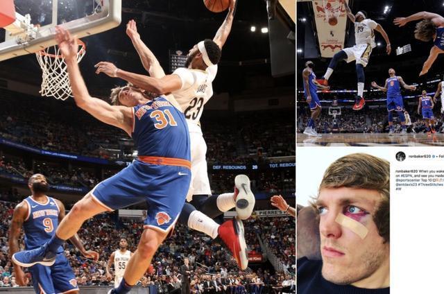 NBA球员离奇受伤有多逗?一人别扣的iphoneX面部都识别不出来!莆田高仿鞋,莆田精仿鞋