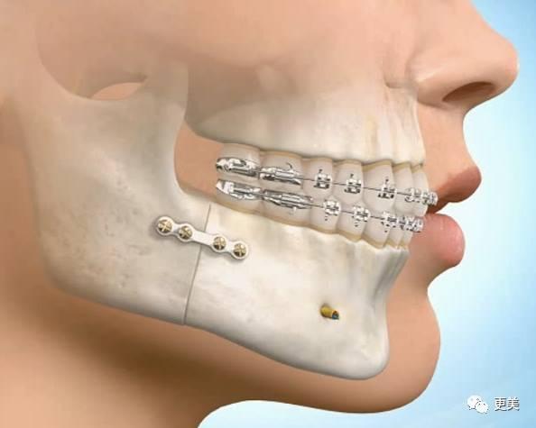 注:下頜骨矯正手術+戴牙套矯正   不過并不是所有嘴凸的人都要采取正頜手術的方法.