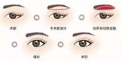 开眼角清理眼睑