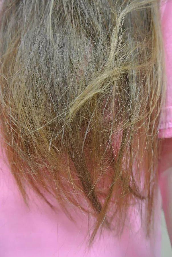 头发干枯毛躁分叉蓬松 用什么洗发水好图片
