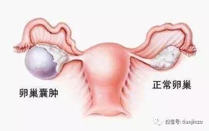正常卵巢 卵巢囊肿