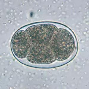 人体寄生虫虫卵图片_寄生虫学虫卵经典总结及图片