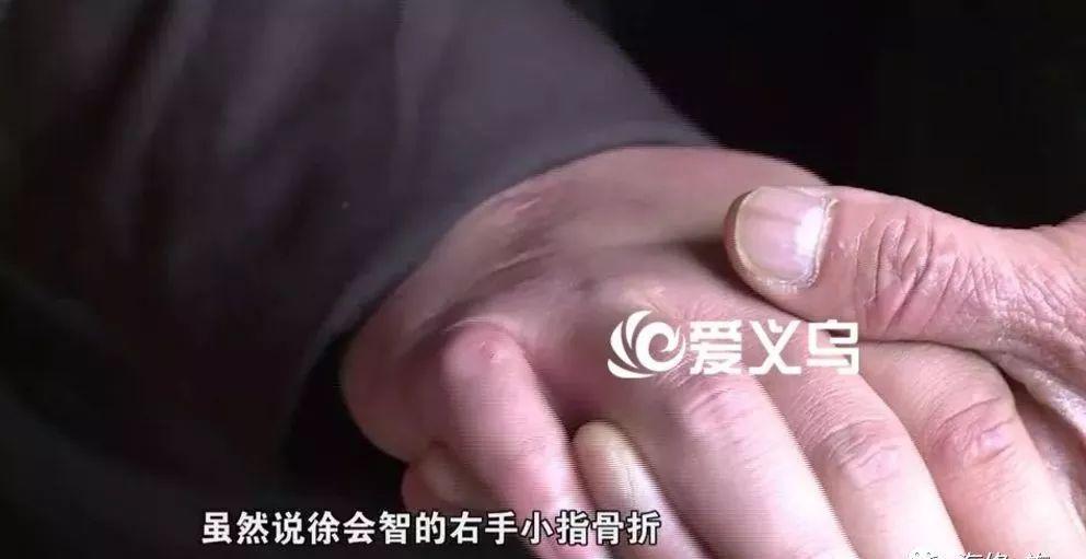 小拇指老总_小拇指骨折图片