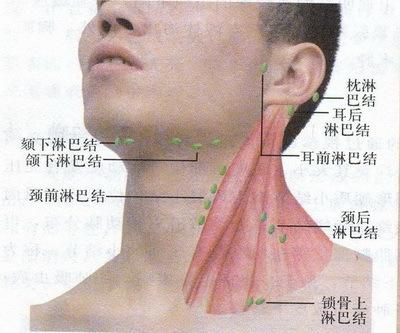 什么是锁骨上淋巴结核和颌下淋巴结核