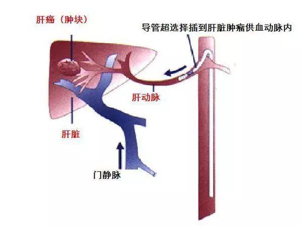 经肝动脉化疗栓塞示意图
