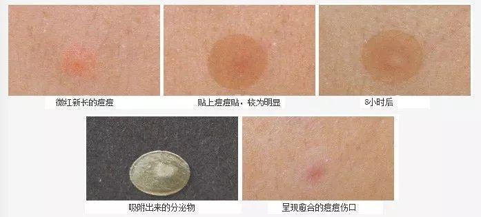 痘痘贴的原理是什么_痘痘贴是什么   1.是一种特殊亲水性的水胶体,可吸附分泌物.