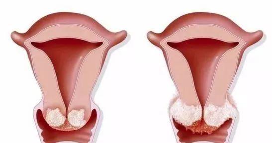 出血是不是宫颈癌_正文  01  身体多部位病变 宫颈癌的危害可直接导致腰腹酸痛,阴道出血