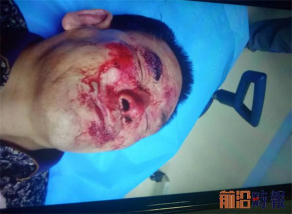 山东章丘:村民举报村支书违法生育遭报复致重伤