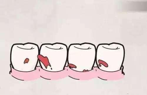 根管治疗后舌头痛