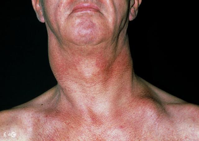 扁桃体发炎也会淋巴结肿大,下颚有疙瘩是淋巴毒素多