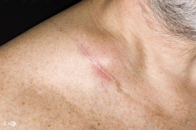 形   良性的淋巴结肿大有一定的形状,表面会光滑平整,而恶性的淋巴