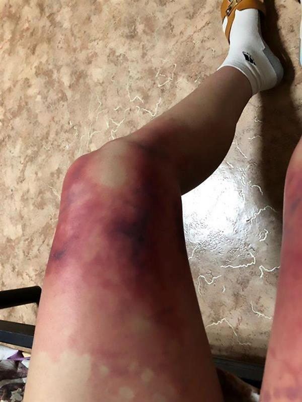 女大学生-40℃超短裙出门:双腿严重冻伤的照片 - 2