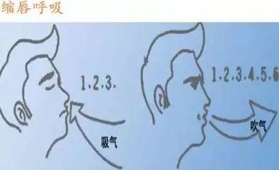 缩唇呼吸的原理_缩唇呼吸的缩唇呼吸简介