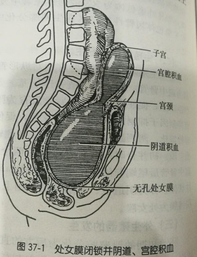 男的捅阴道电影_先天性无阴道,阴道闭锁,阴道横隔,也就是月经出来的道阻了,不通畅,也