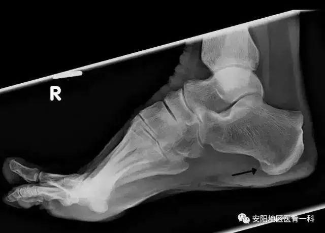 骨刺怎么治疗_什么是骨刺?长骨刺了怎么办?