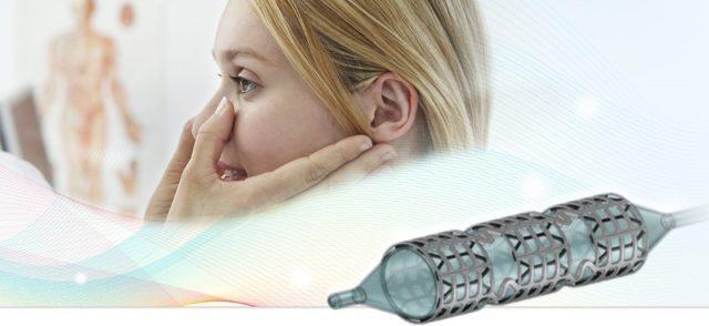 支架材料与设计开拓呼吸道支架应用,中国、以色列鼻窦支架相继问世