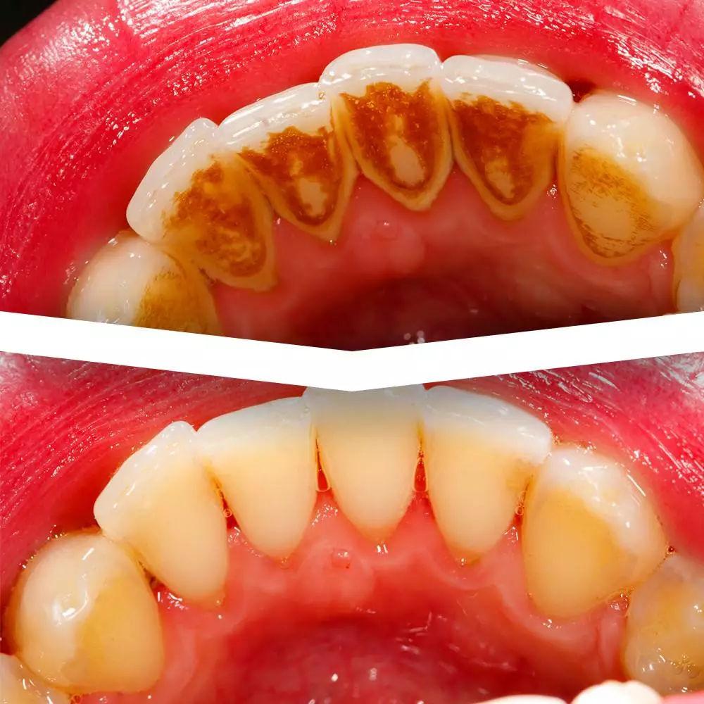 洗牙原理是什么_洗牙用的什么工具图片