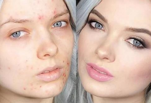 长痘可以化妆,但一定要注意清洗