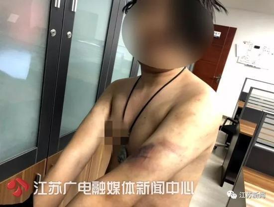 男子提醒朋友其女友劈腿 结果被疑挑拨离间遭挟持