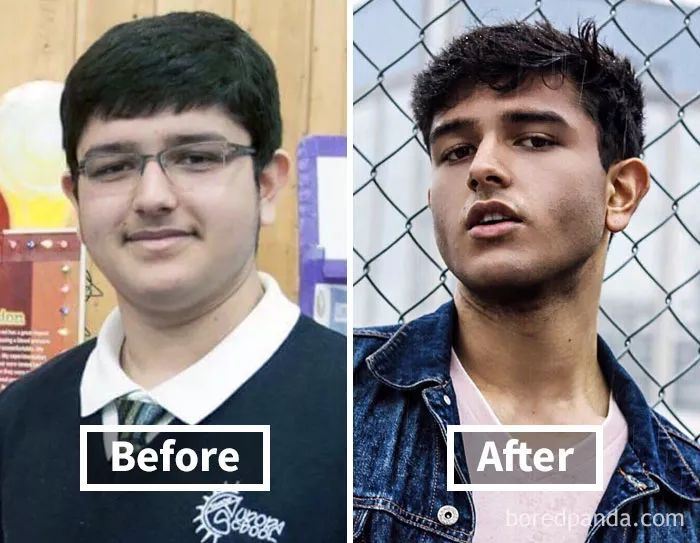 减肥瘦了脸会变小吗图片