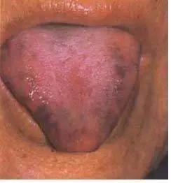 感冒还是上火 这样看舌头就能确定图片