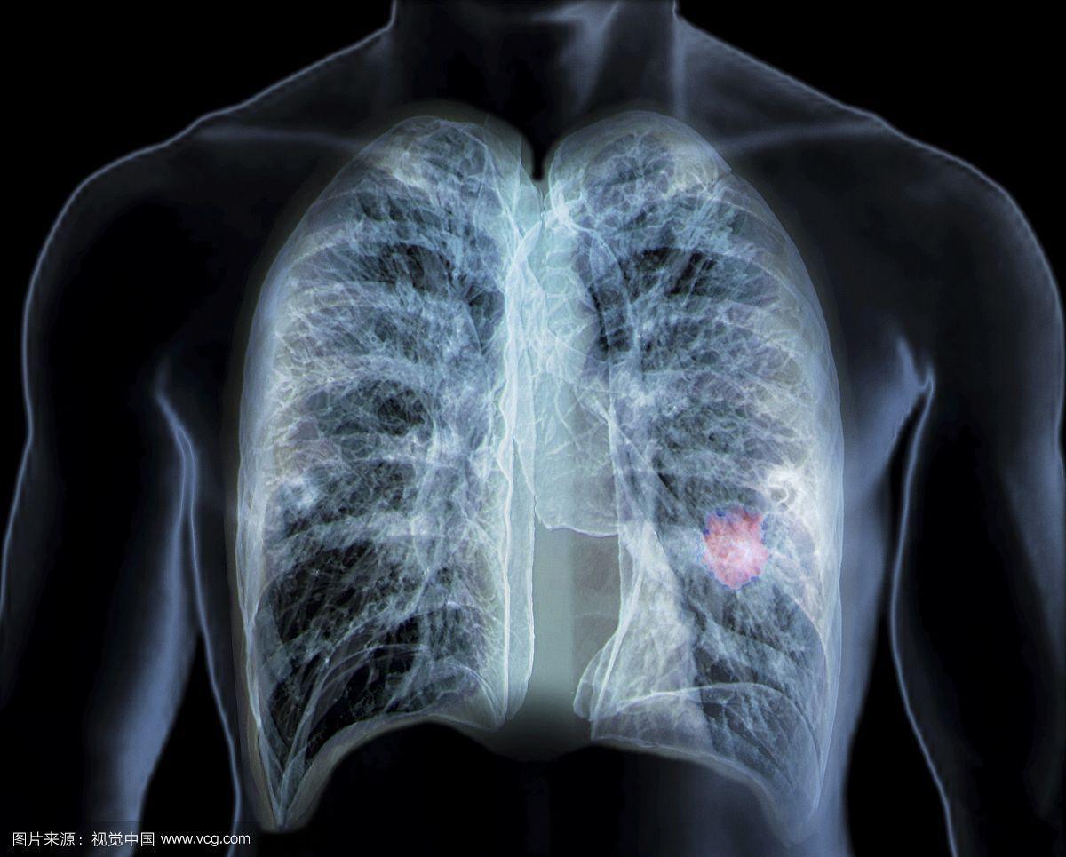 世界卫生组织将香烟定为一类致癌原,医生说吸烟会导致四种疾病! - 万荣县西村乡卫生院 - 您的健康,我们与你同行