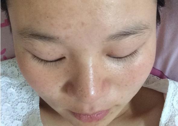 针对不同肤质,祛斑重点也不同